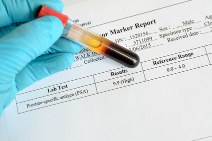 Blood sample with PSA high result
