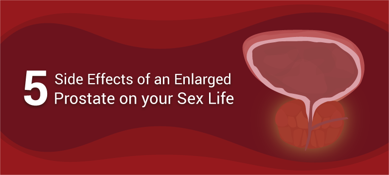 Effects of enlarged prostate and sex